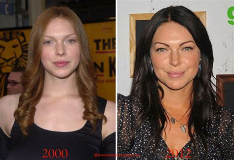 Kitchen Facelift Before And After by Did Laura Prepon Have Plastic Surgery Celebrity Plastic