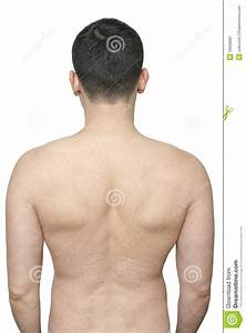 Stretch Scars On Male Back Royalty Free Stock Photography ...