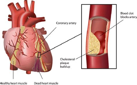 home remedies  clogged arteries clear blocked