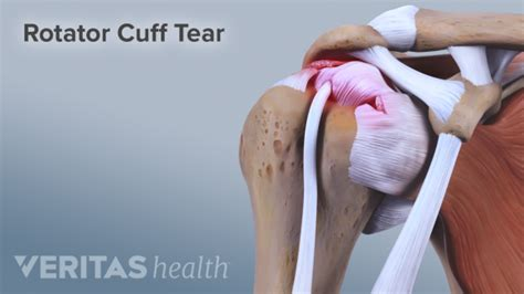 5 Stretches And Exercises For Rotator Cuff Tears