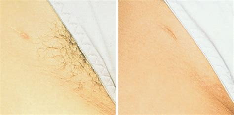 genuine laser hair removal  leeds  bradford good