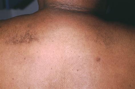 scleredema scleredema  buschke scleredema adultorum