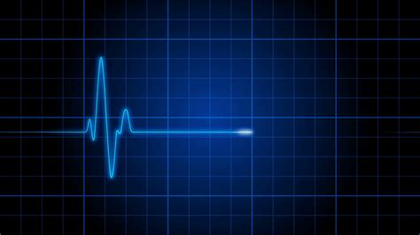 An Electrocardiogram Heart Monitor Pulses On A