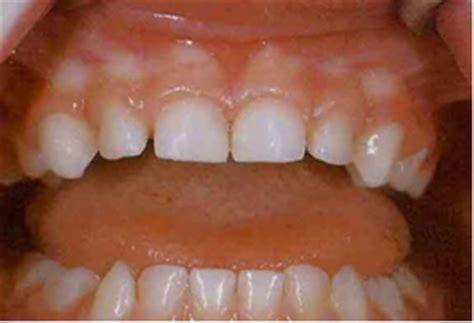lift  lip screening sa health