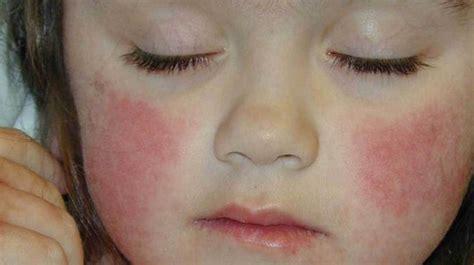 rash  common skin rashes pictures   treatment