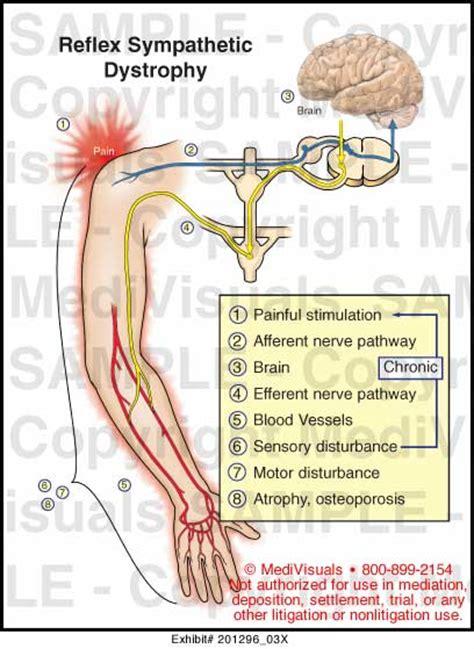 Medivisuals Reflex Sympathetic Dystrophy Medical Illustration