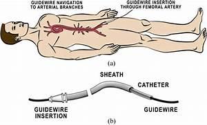 Endovascular Procedure Basics   A  Insert Guidewire Into