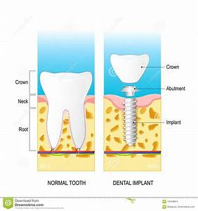 Dental Implant  Vector Diagram For Medical Use Stock