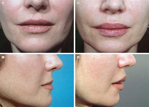 Fat injections in lips
