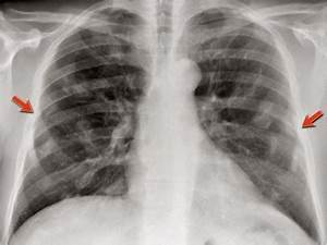 Chest Medicine Made Easy-Dr Deepu: Basics Of Chest X Ray Part-6, The Lungs, Pleura And The Chest ...  Pneumonia Asbestos