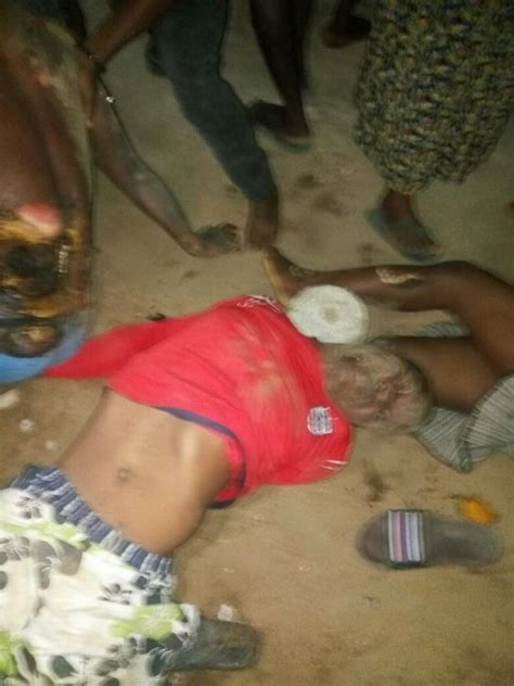 Omg! See Graphic Photos Of Victims Who Were Electrocuted ...