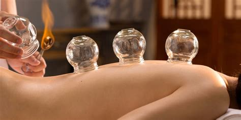 #OnTrend - Everything You Need To Know About Cupping - CHAARG