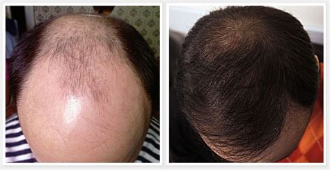 10 Promising Scientific Treatment which could Prevent Hair