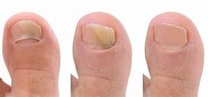 Удаление грибка ногтей лазером клиники
