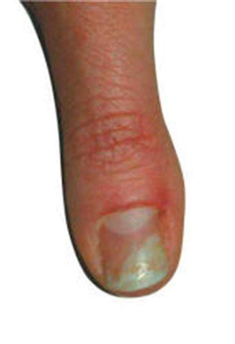 tammy taylor nail fungus   prevented
