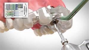 Use Of Short Dental Implants
