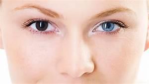 Heterochromia Iridum Mutation- Olivia Lageschulte - ThingLink