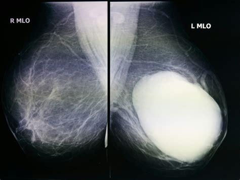 Random Reflections Of A Breast Surgeon