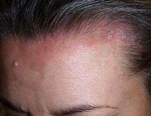 Препарат асд лечение псориаза