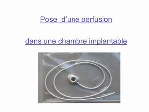 la chambre implantable mercredi 23 avril ppt video online With pose d une chambre implantable video