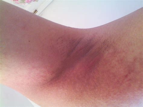 Severe Itching Need Solutions