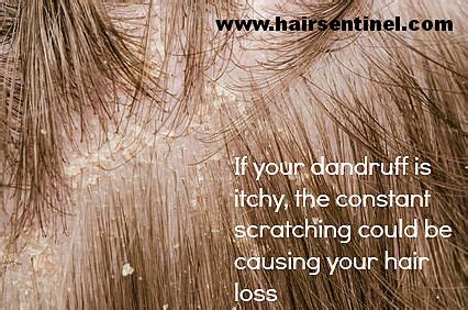 itchy scalp hair loss causes and cures