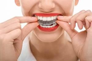 Dental Braces  U0026 Invisalign Costs  Options  Costs  U0026 Other
