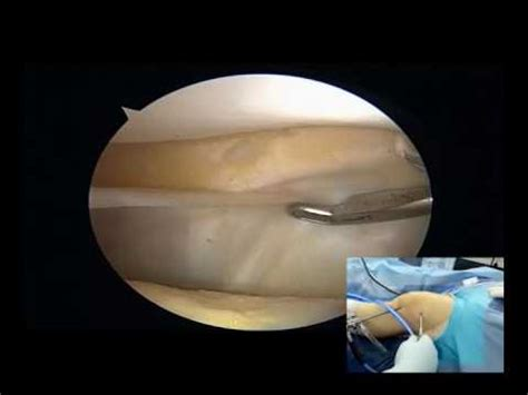 Medial plica removal through Superolateral working portal easy and clean surgery - YouTube