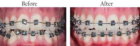 sunset    invisalign kendale lakes    dental implants hammocks