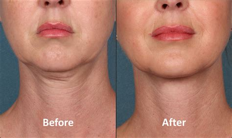 double chin treatment washington dc  chevy chase md