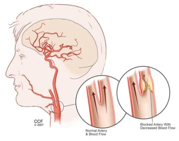 Carotid Artery Disease (carotid Artery Stenosis. Org Openqa Selenium Webdriver. Hotels Edmonton Airport Breast Cancer Message. Masters In Christian Leadership. Social Media Marketing Software Free. Medicare Insurance Type Codes. Small Moves Los Angeles St Louis Rams Coaches. Marathon Electrical Contractors. Engineering Grad Schools Death Life Insurance
