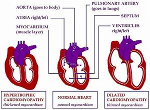 72 best images about Cardiac