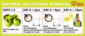 Health: Getting rid of gallstones without surgery | Puso ...