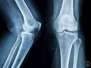 What Are The Treatments For Bone Spurs On The Leg Bone
