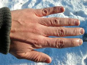 Some, Pictures, Of, Mild, Frostbite, -, Healthtopquestions