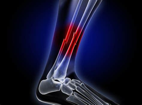 broken injury bone stress injuries bones leg ultrasound fractures athletes healing female intensity tibia fracture low faster risk accident body