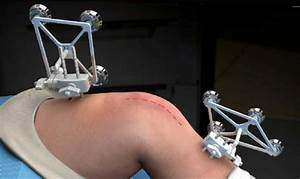 Robotic Partial Knee Replacement
