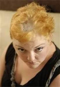 Woman Left Bald After Hair Dye Burns