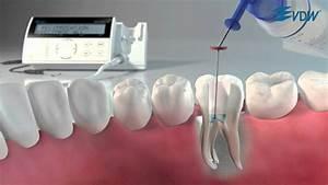 Vdw Dental  U00b7 Reciproc 3  5  Easier Than Ever Before
