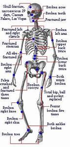 Evel Knievel Injury Diagram