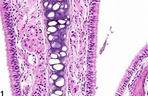 Nose  Epithelium - Hyperplasia