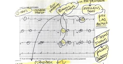 How I Learned to Read ECGs Better than a Cardiologist ...