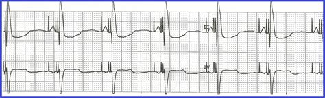 image dual chamber pacemaker rhythm strip download