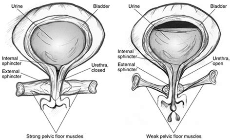 Vitrectomy Chair Medicare Coverage by 100 Muscles Of The Pelvic Floor In Pelvic