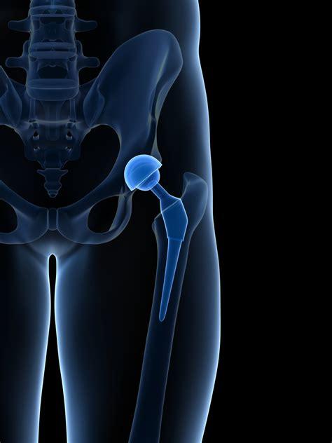 hip replacement    surgery  medicine