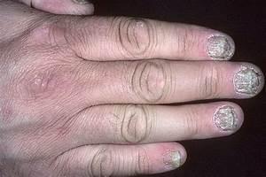 Псориаз на пальцах у костяшек