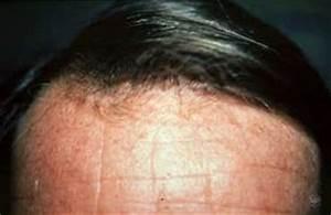 Hair Loss Tigard OR Dermatologist
