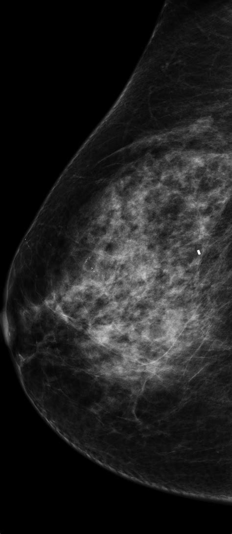 Artificial intelligence expedites breast cancer risk