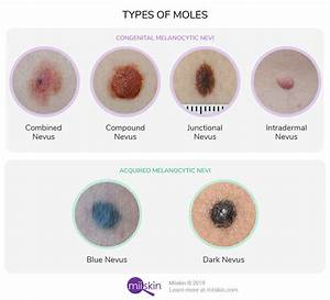 Moles (Nevi) Guide - Types & Pictures of Normal Healthy Moles  Skin Cancer Birthmarks - pigmented