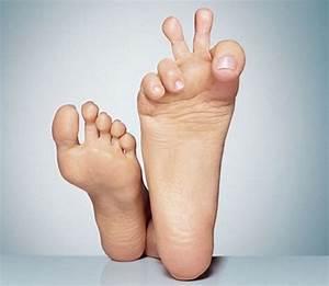 На ноге грибок что делать